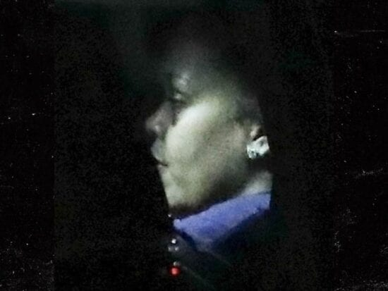 Rihanna spotted with bruised face (Source; TMZ)